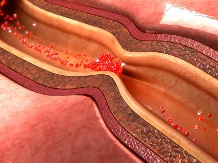 5 căn bệnh gây tử vong cao nhất và cách phòng chống ảnh 2
