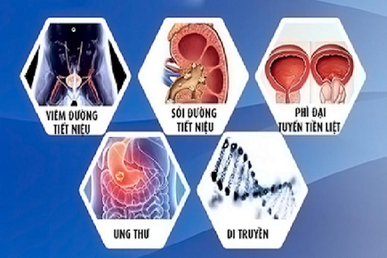 Các nguyên nhân gây tiểu ra máu ảnh 1