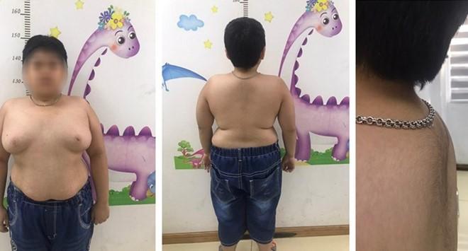Bé trai rậm lông, ngực nở như con gái vì lạm dụng thuốc corticoid ảnh 1