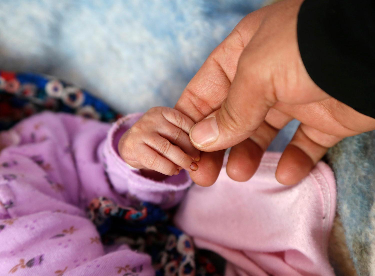 Tình trạng suy dinh dưỡng của trẻ em Yemen ngày càng tồi tệ ảnh 1