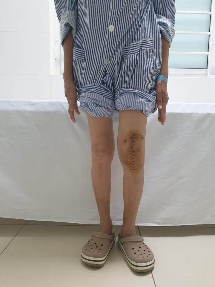 Lần đầu tiên tại Việt Nam thay thành công khớp gối nhân tạo cho người mắc lao khớp gối ảnh 1