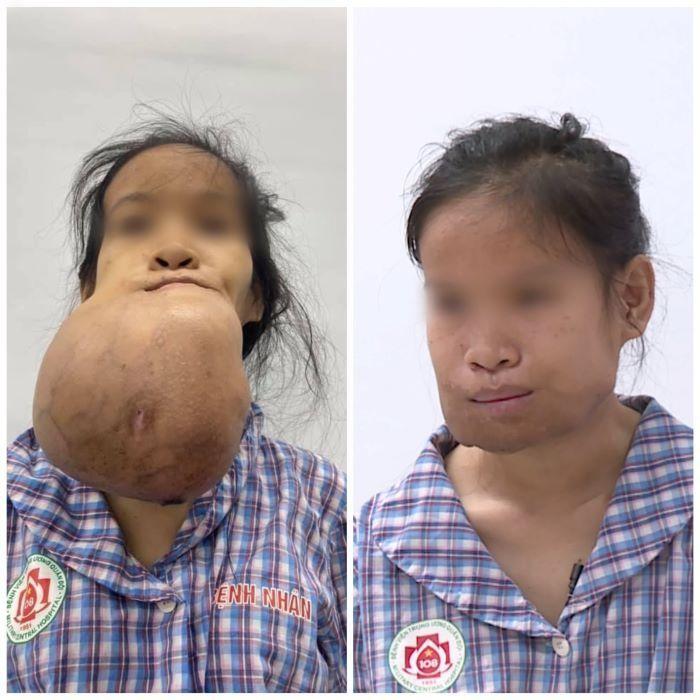 Cắt bỏ thành công khối u khổng lồ trên gương mặt thiếu nữ ảnh 1