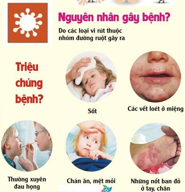 Chuyên gia chỉ cách nhận diện bệnh tay chân miệng ở trẻ em qua các giai đoạn ảnh 2