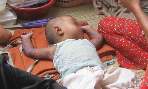 Chuyên gia chỉ cách nhận diện bệnh tay chân miệng ở trẻ em qua các giai đoạn ảnh 1
