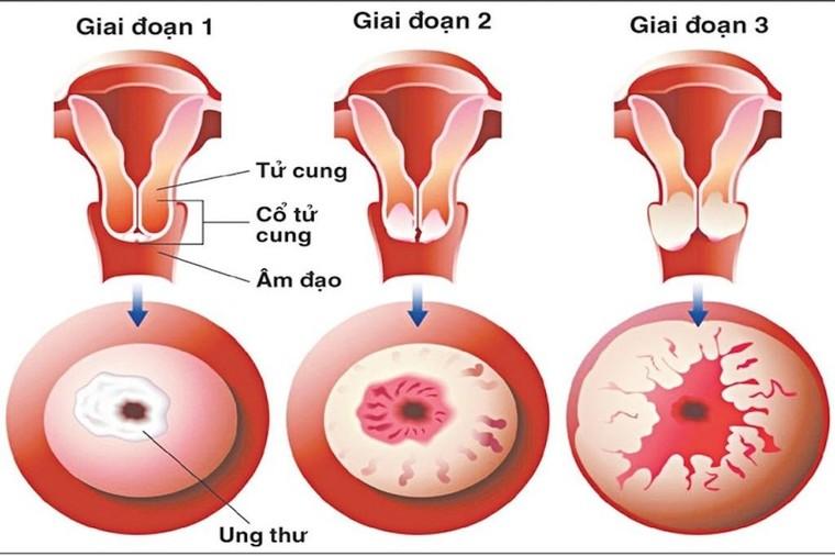 Cảnh báo: Dấu hiệu bệnh ung thư cổ tử cung ảnh 1