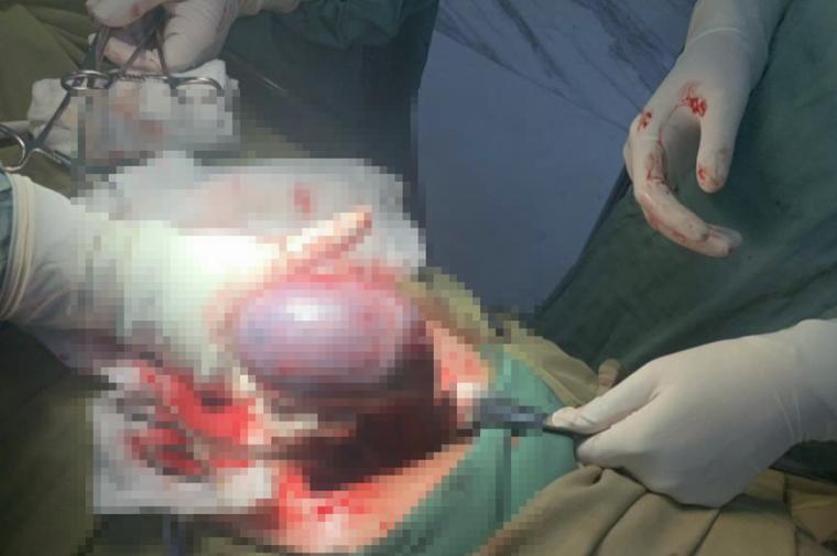 Cứu sống sản phụ mang khối u xoắn đang hoại tử ảnh 1