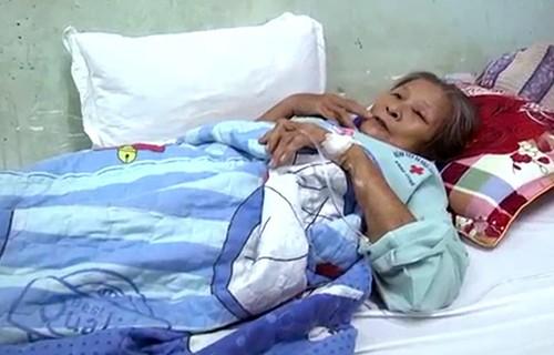 Bà Đạt điều trị tại bệnh viện sau khi bị đàn ông đốt. Ảnh: Thái Hà