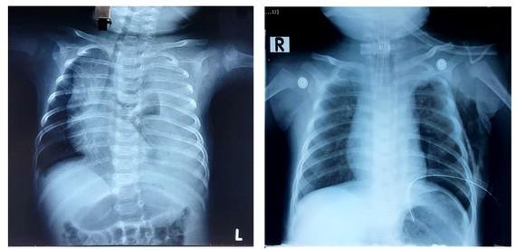 Hình ảnh chụp X-quang của bé trai sau ca phẫu thuật thành công bằng phương pháp thắt ống ngực.