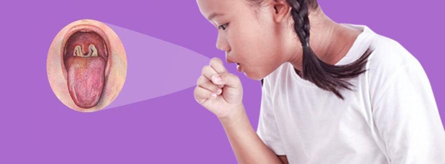 Chuyên gia khuyến cáo cách phân biệt bệnh bạch hầu với viêm họng, viêm amidan