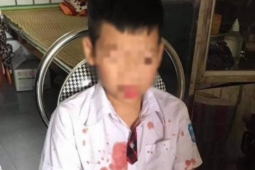 Cháu Kh. bị thương ở vùng mặt và tay sau khi bị Đức hành hung