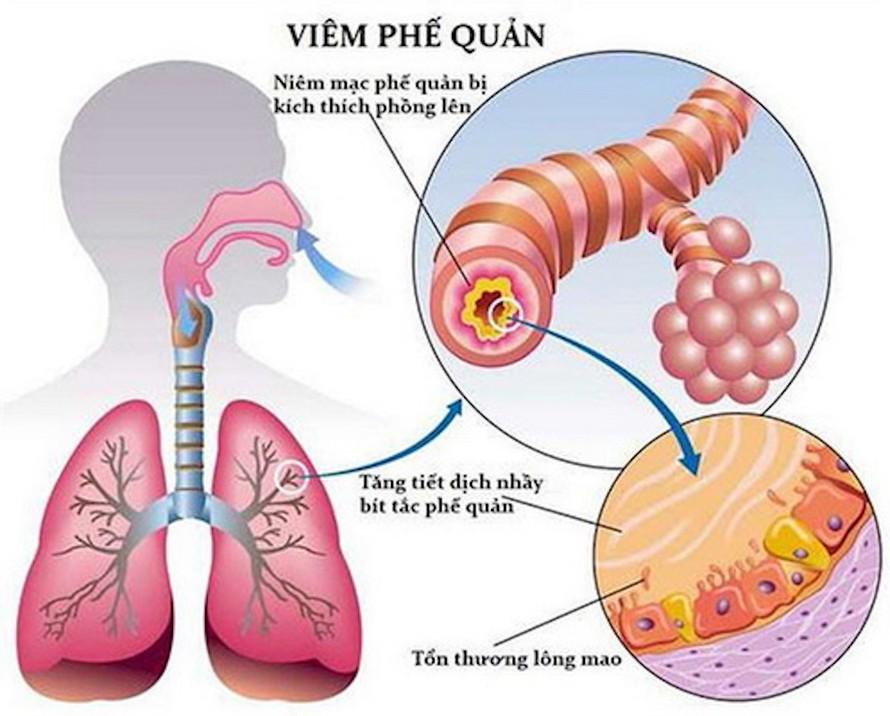 VPQ là bệnh rất thường gặp ở mọi lứa tuổi.