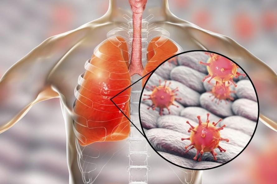 Virus tấn công đường hô hấp gây bệnh phổi có thể dẫn tới tử vong