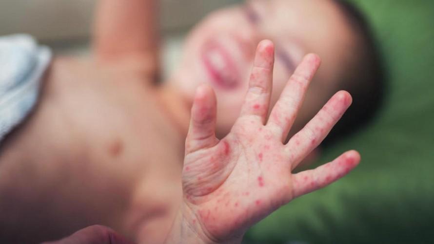 Phụ huynh và nhà trường cần chủ động các biện pháp để phòng ngừa bệnh tay - chân - miệng cho trẻ. (Ảnh minh hoạ).