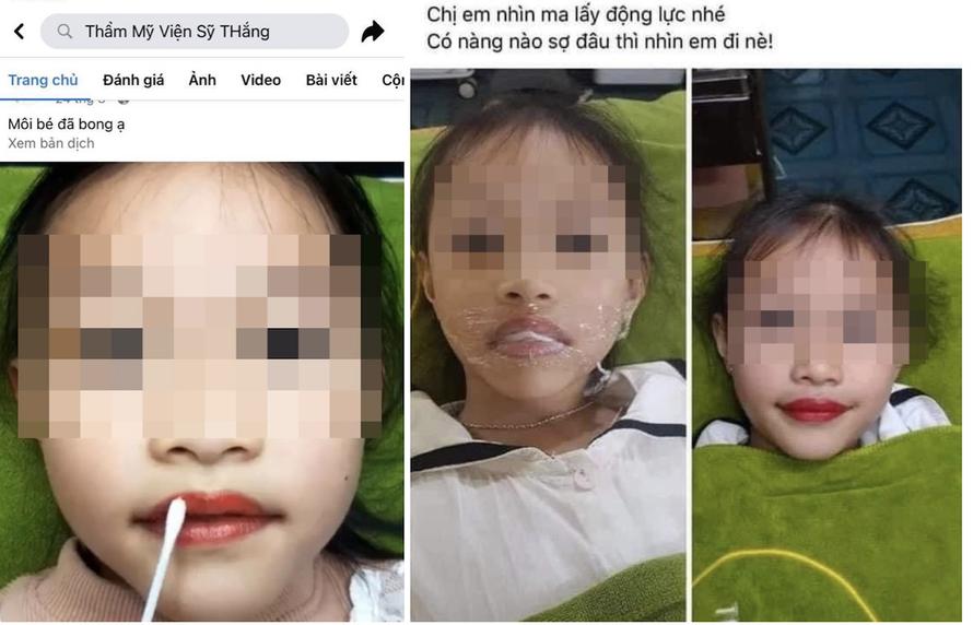 Cộng đồng phẫn nộ với thẩm mỹ viện xăm môi cho bé 5 tuổi để quảng cáo