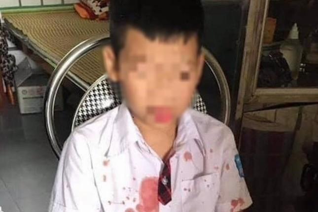 Cháu Kh. bị thương ở vùng mặt và tay sau khi bị Đức hành hung.