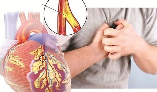 Tăng nguy cơ mắc bệnh gan về già khi thời trẻ béo phì