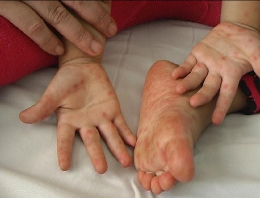 Cách phòng chống bệnh tay chân miệng