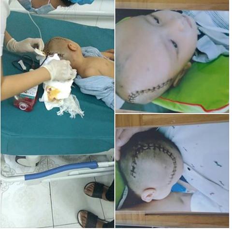 Hình ảnh cháu G.B sau phẫu thuật (ảnh GDCC)