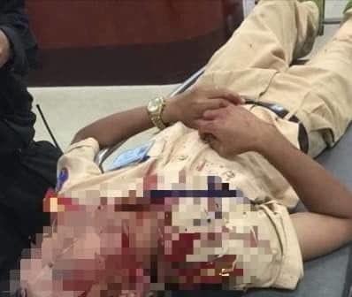 Đại úy Mai Hồng Sơn bị thương ở vùng đầu sau khi bị tấn công. Ảnh: Tiền Phong
