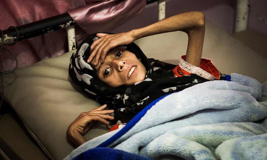 Sadia Ibrahim Mahmud, khi đó 11 tuổi, trên giường bệnh vào tháng 9 năm 2019. Cô bé đã qua đời không lâu sau đó. Ảnh: The Guardian