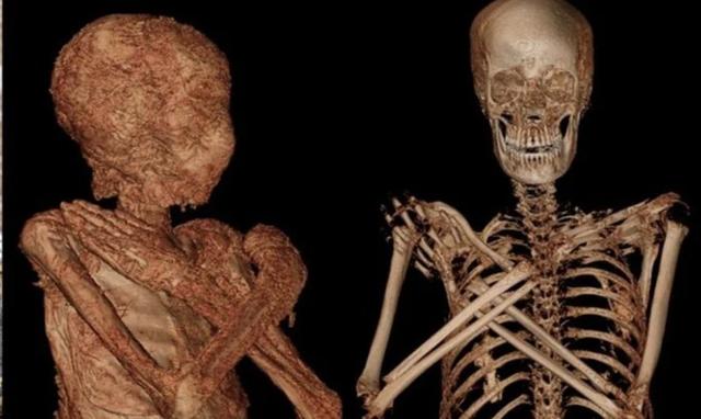 Phát hiện xác ướp Ai Cập cổ đại vẫn đang… mang thai