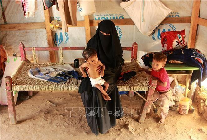 Trẻ em bị suy dinh dưỡng do nạn đói kéo dài ở Hajjah, Yemen. Ảnh: AFP/TTXVN