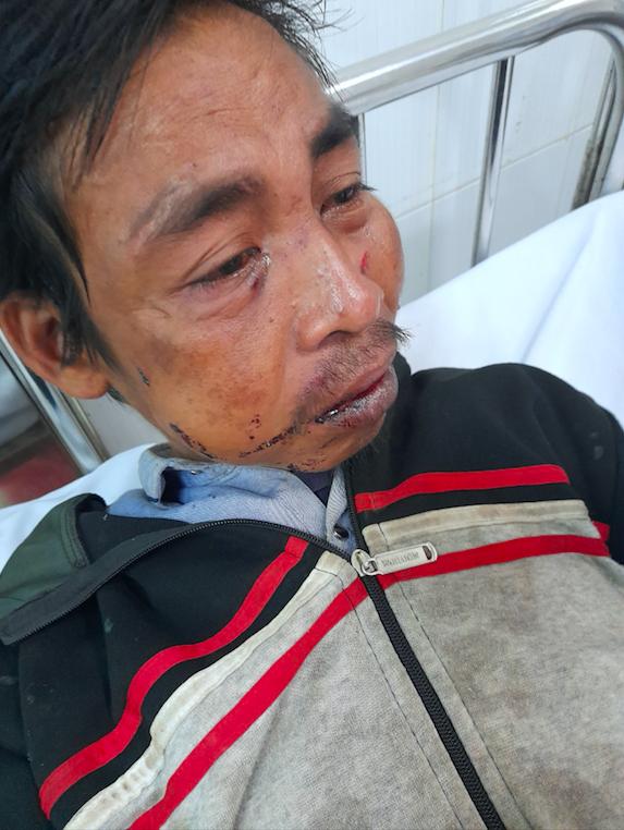 Ông Phạm Văn Hậu, người Chơ-ro bị hành hung thương tích đầy thân thể vào tối ngày 22/1, sau đó có dấu hiệu rối loạn tâm thần phải chuyển viện điều trị. Ảnh: Xuân Thời.