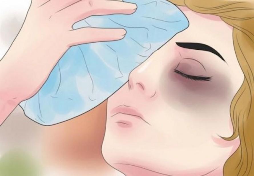 Nên chườm mắt bằng đá sạch bọc trong vải sạch.